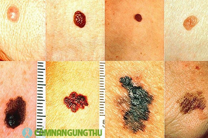ung thư da sống được bao lâu Cẩm Nang Ung Thư