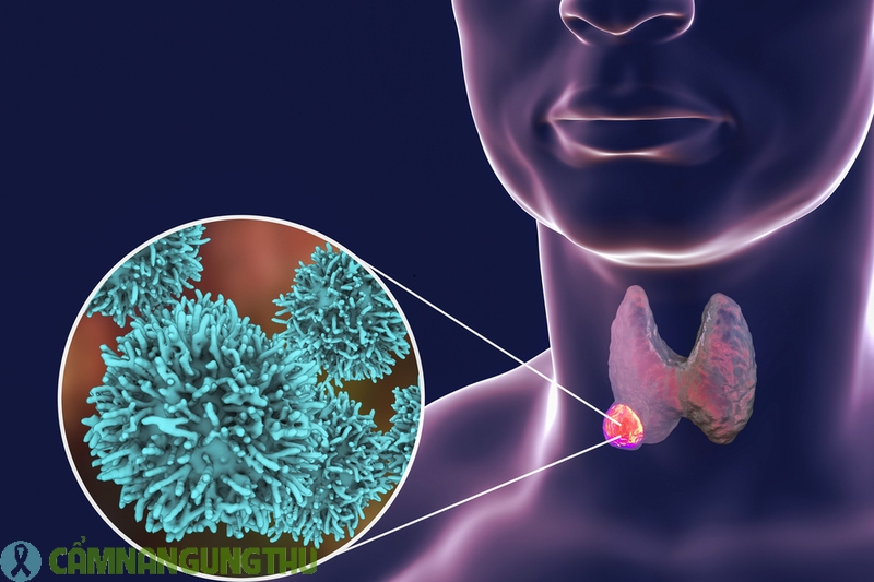 ung thư tuyến giáp có chữa được không