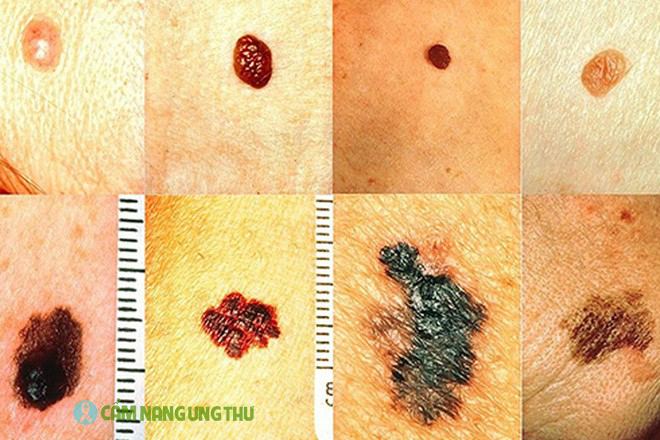 dấu hiệu ung thư da