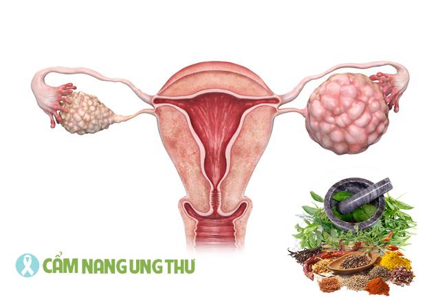 thuoc-nam-co-chua-duoc-ung-thu-buong-trung-khong