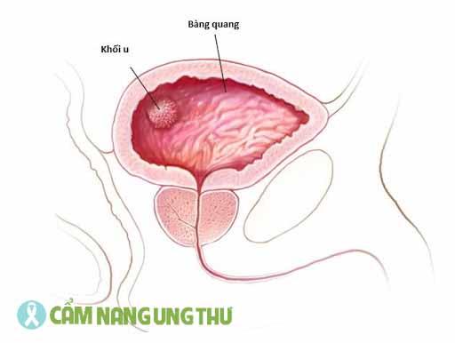 ung-thu-bang-quang-tai-phat-song-duoc-bao-lau