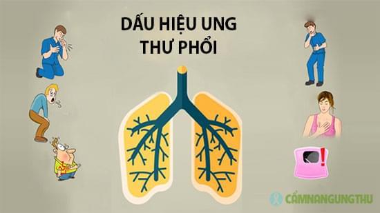 dau-hieu-ung-thu-phoi