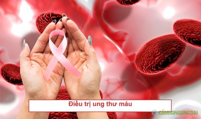 phuong-phap-dieu-tri-ung-thu-mau