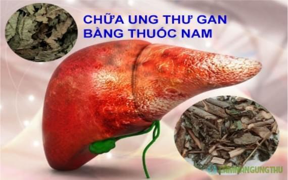 dieu tri ung thu gan bang thuoc nam